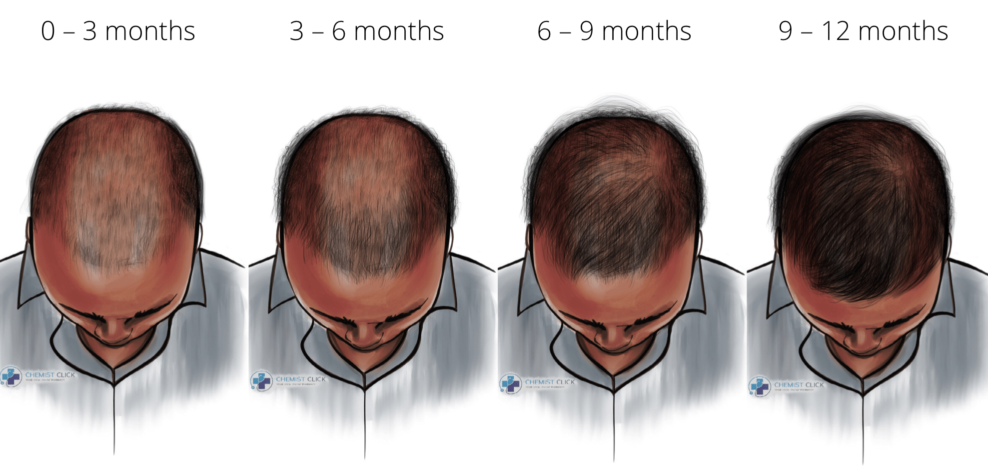 finasteride one year results Afro hair