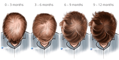 finasteride results after 3, 6, 9 and 12 months