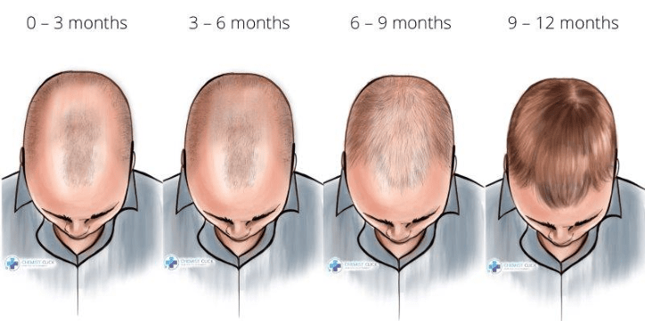Timeline of finasteride results after 1 year