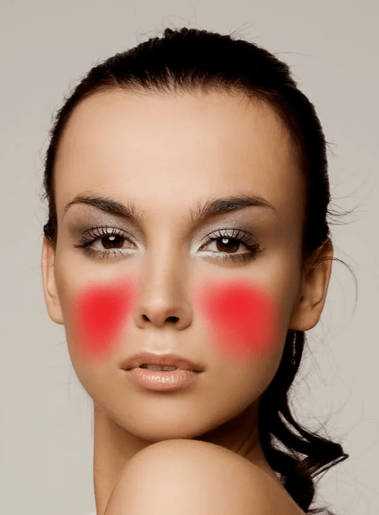 A picture of a woman's cheeks showing where acne can develop around the cheeks