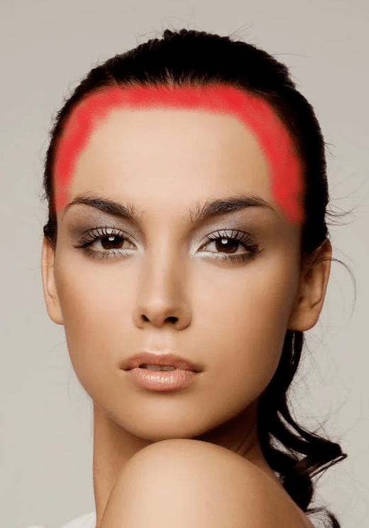 A picture of a womans face showing where acne can develop in the hairline
