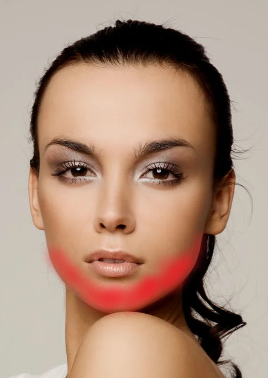 A picture of a woman's jawline showing where acne can develop in the jaw