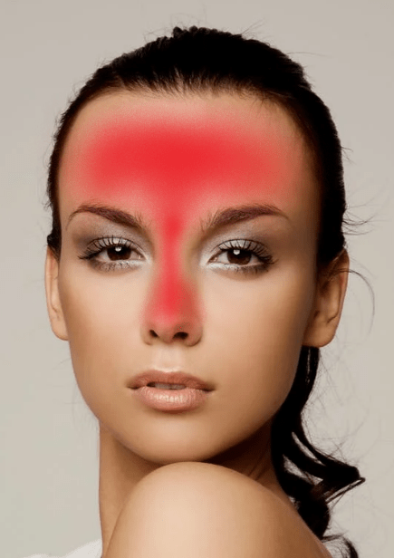 A picture of a woman's face showing where acne can develop around the t-zone