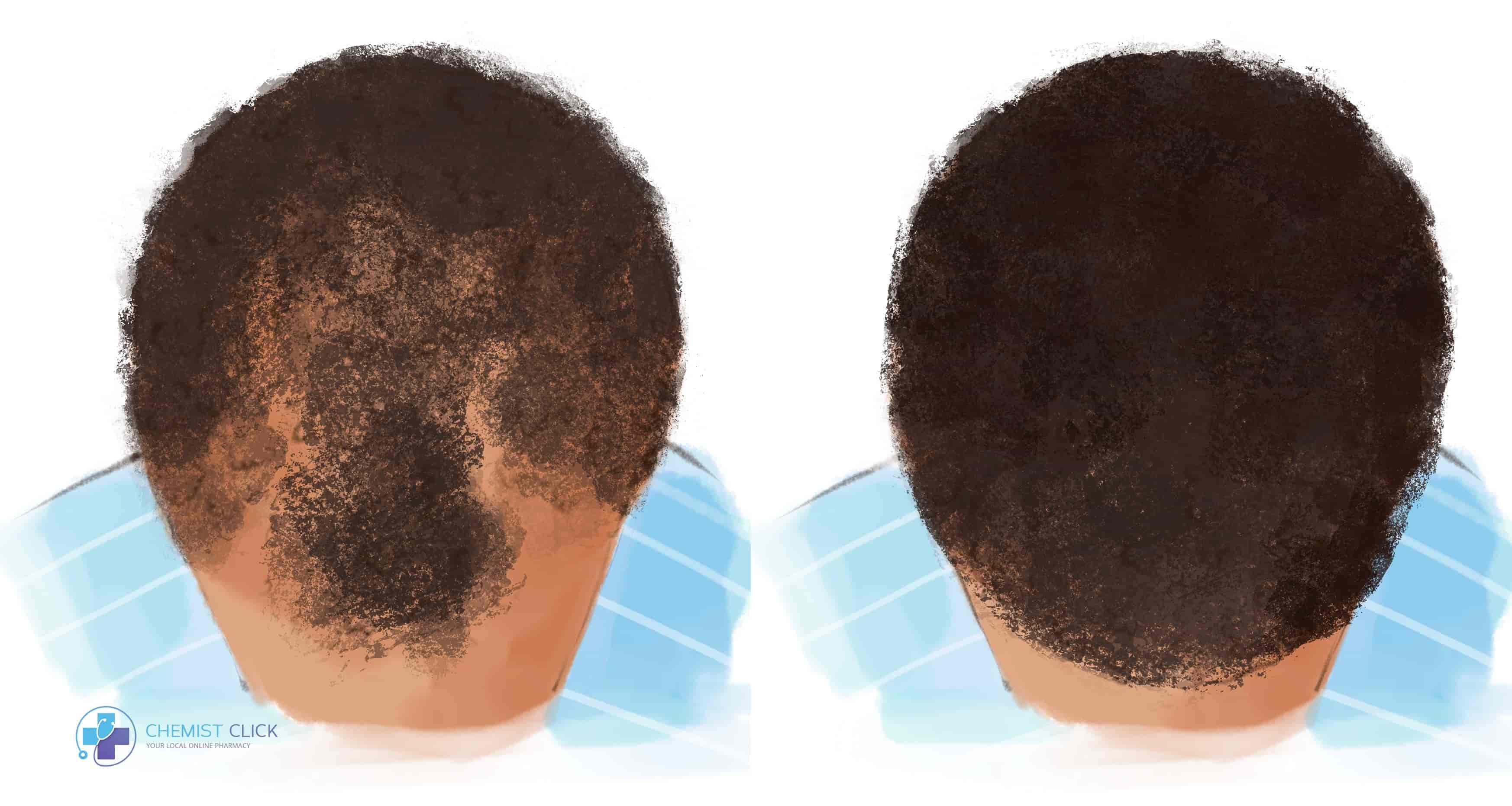Afro hair before and after with finasteride