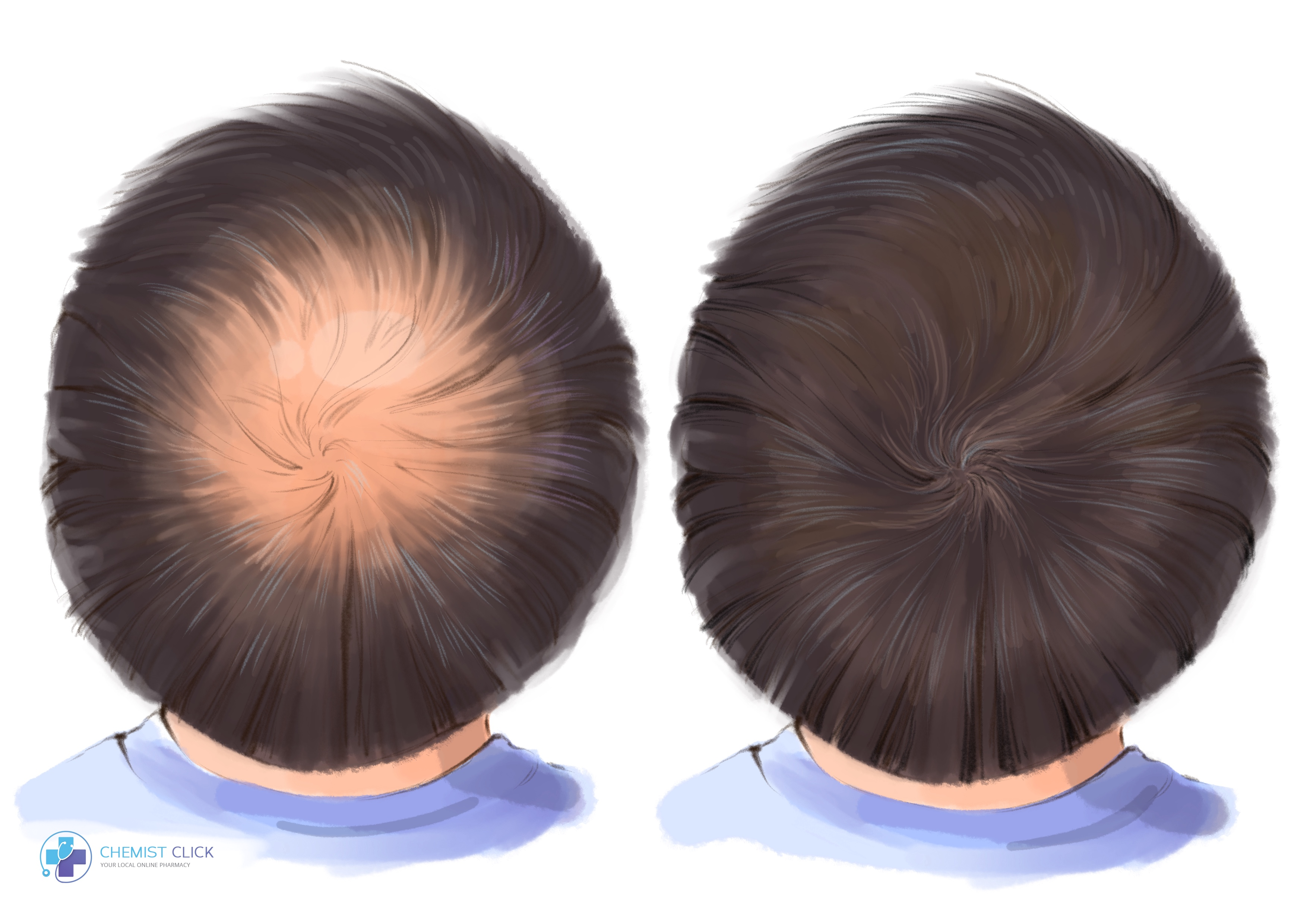 finasteride Propecia results before and after picture